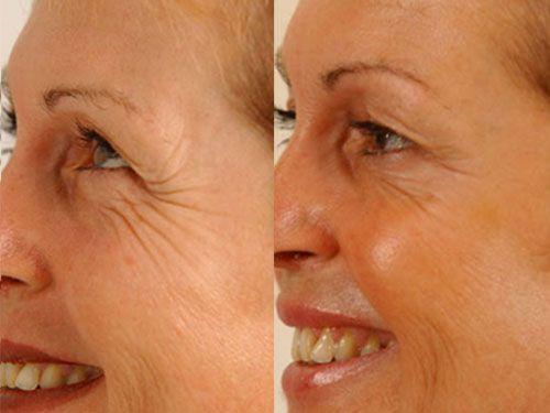 rf-лифтинг лица фото до и после