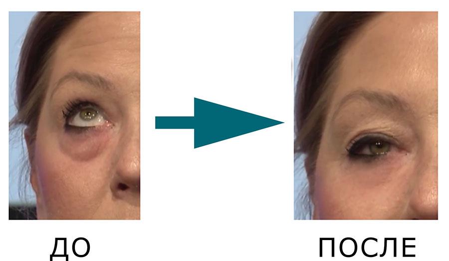 крем Instantly Ageless фото до и после