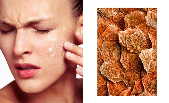 липидный барьер кожи